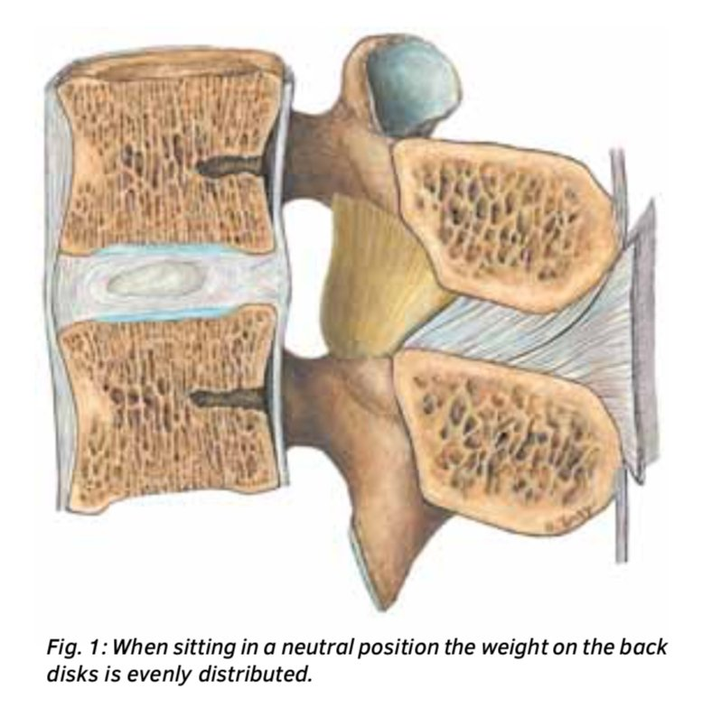 Proper Sitting Posture in the Dental Practice (use a saddle chair!)