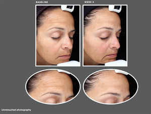 Sente Dermal Repair Cream Before and After Results