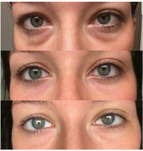 AgeLoc Ideal Eyes