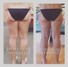 Dermatic Effects - anti-cellulite