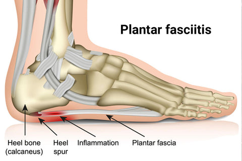 NuuSol-Skeletal foot showing plantar fasciitis pain