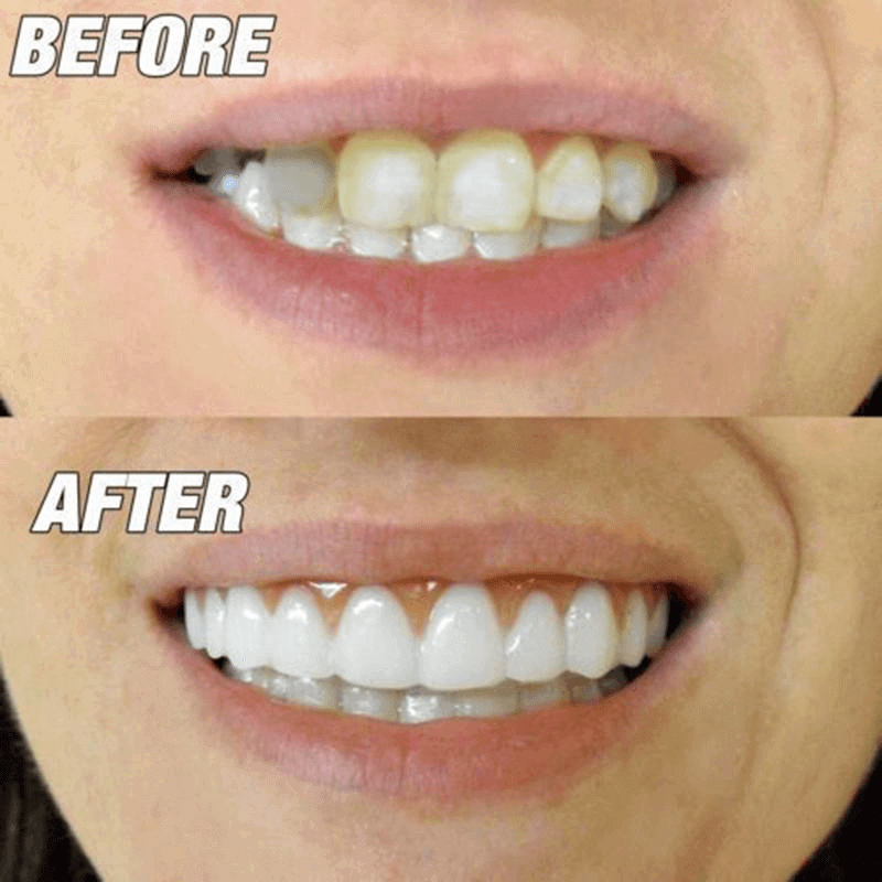 instant-smile-before-after