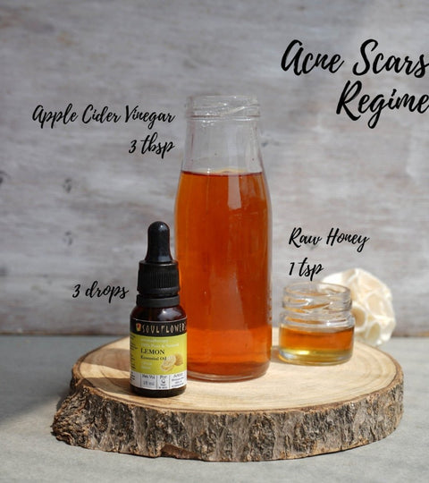 How does apple cider vinegar work in controlling acne? | Soulflower