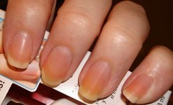 Get-Rid_of_Yellow_Fingernails_Using_Household_Items
