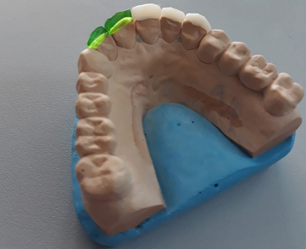 Emax press of 3d printed tooth veneers using PowerCast Burn resin