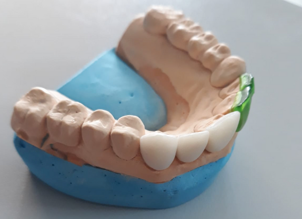 Emax Press of dental veneers using PowerCast Burn resin