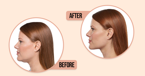 before and after using gua sha