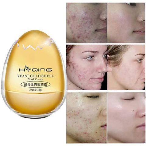 Image of YEAST GOLD SHELL MASK CREAM---Lifting & Tightening & Moisturizing & Hydrating & Whitening & Freckle