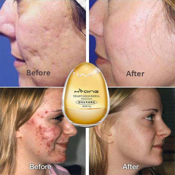 YEAST GOLD SHELL MASK CREAM---Lifting & Tightening & Moisturizing & Hydrating & Whitening & Freckle