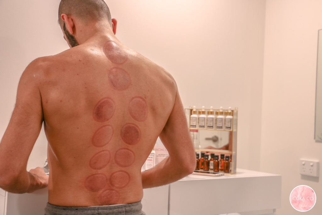 10 surprising benefits of hijama wet cupping therapy
