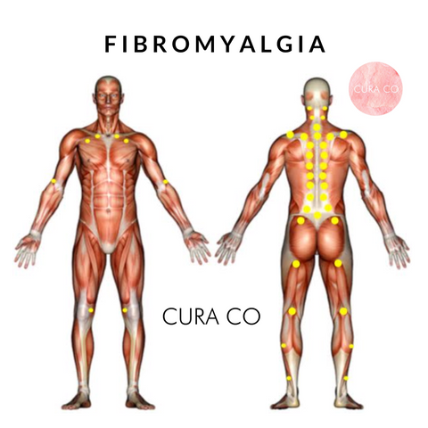 fibromyalgia is frequently associated with depression, anxiety and  posttraumatic stress disorder