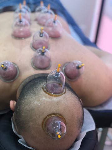 Head Cupping-HIJAMA WET CUPPING THERAPY
