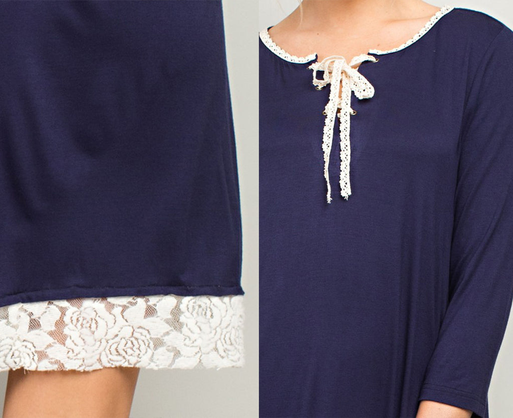Casual Lace Detailed Dress