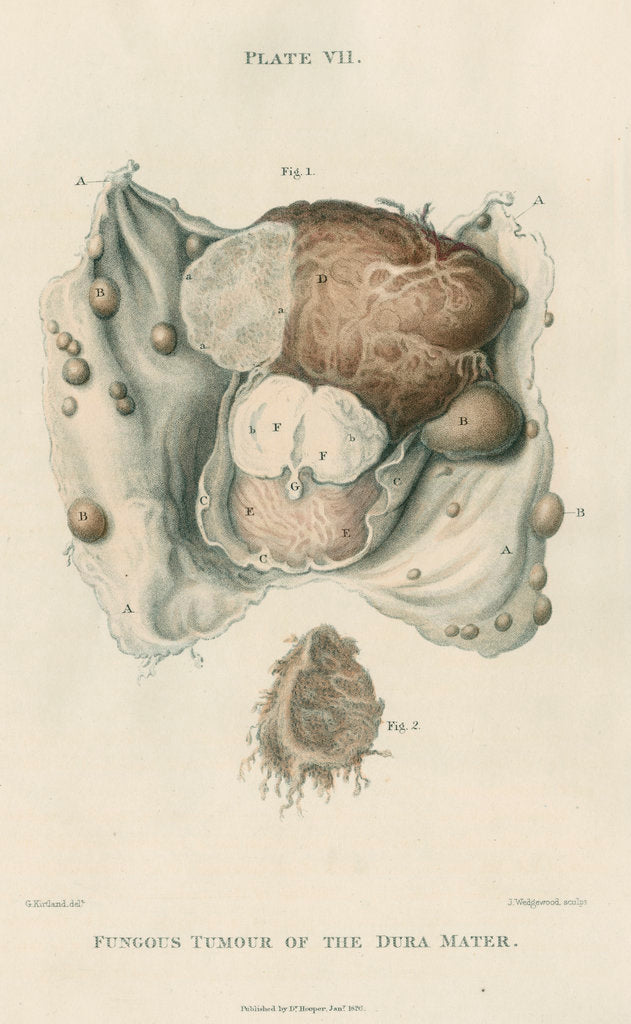 Detail of 'Fungous tumour of the dura mater' by J Wedgewood