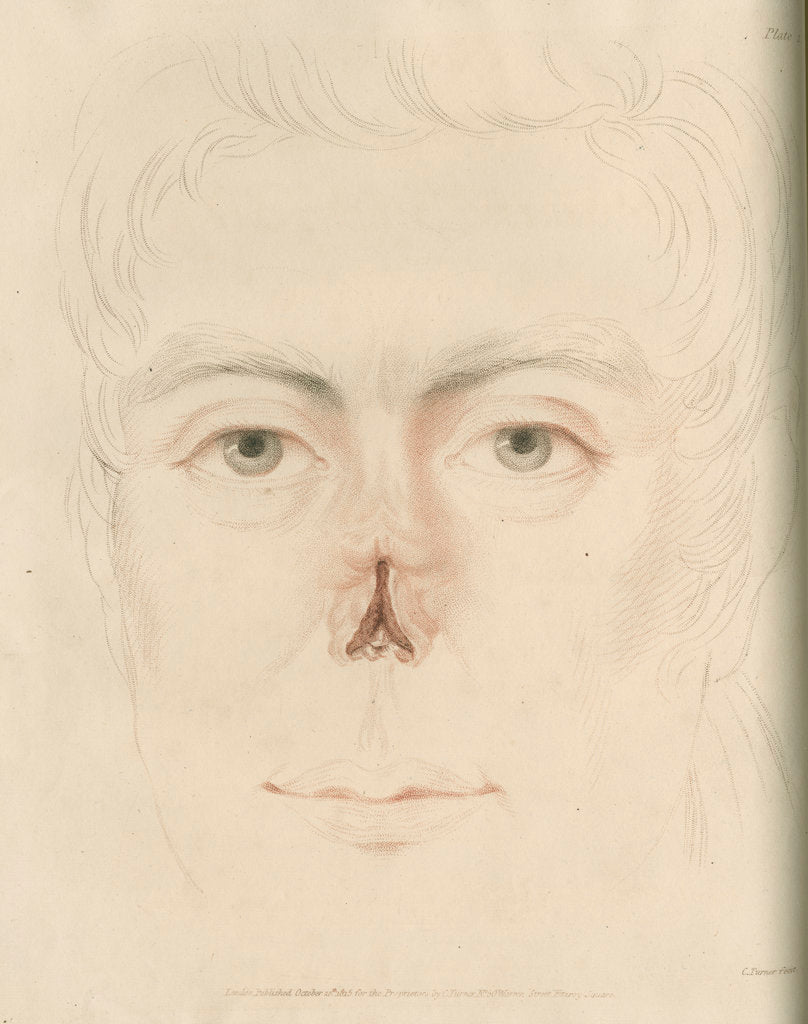 Detail of A candidate for a nose replacement by Charles Turner