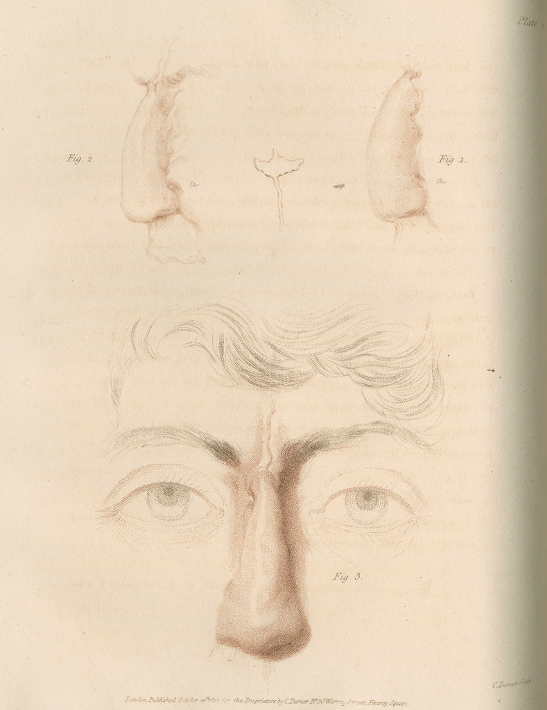 Detail of A successful nose replacement using the Indian Method by Charles Turner