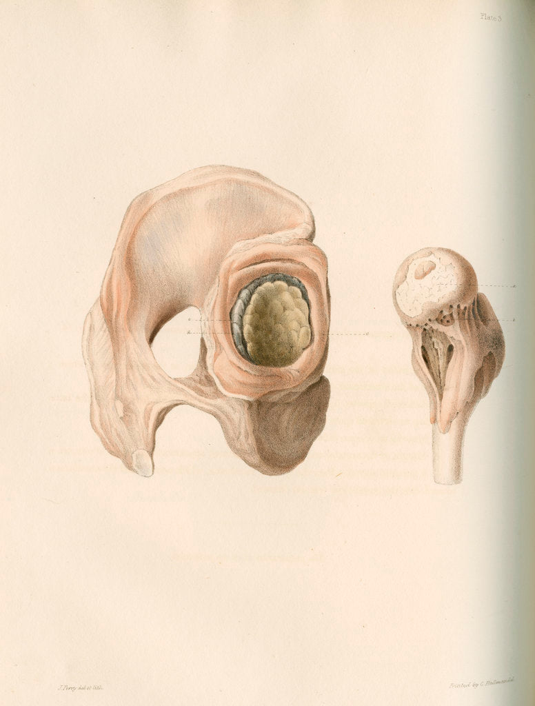 Detail of Hip and femur by G Hallmandel