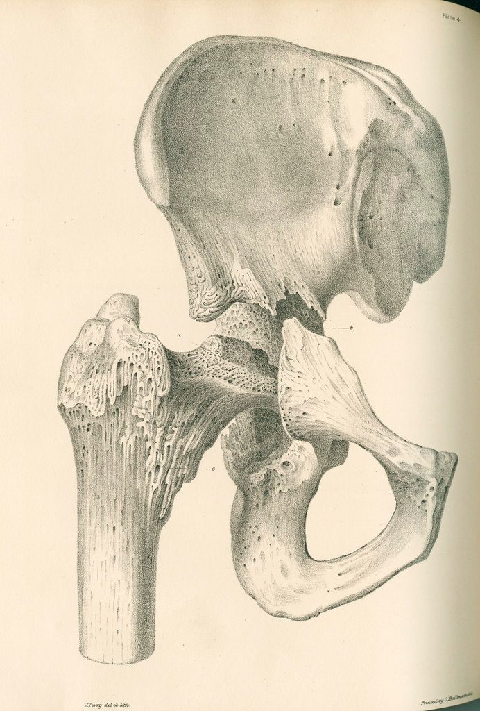 Detail of Front view of the right hip and femur by J Perry