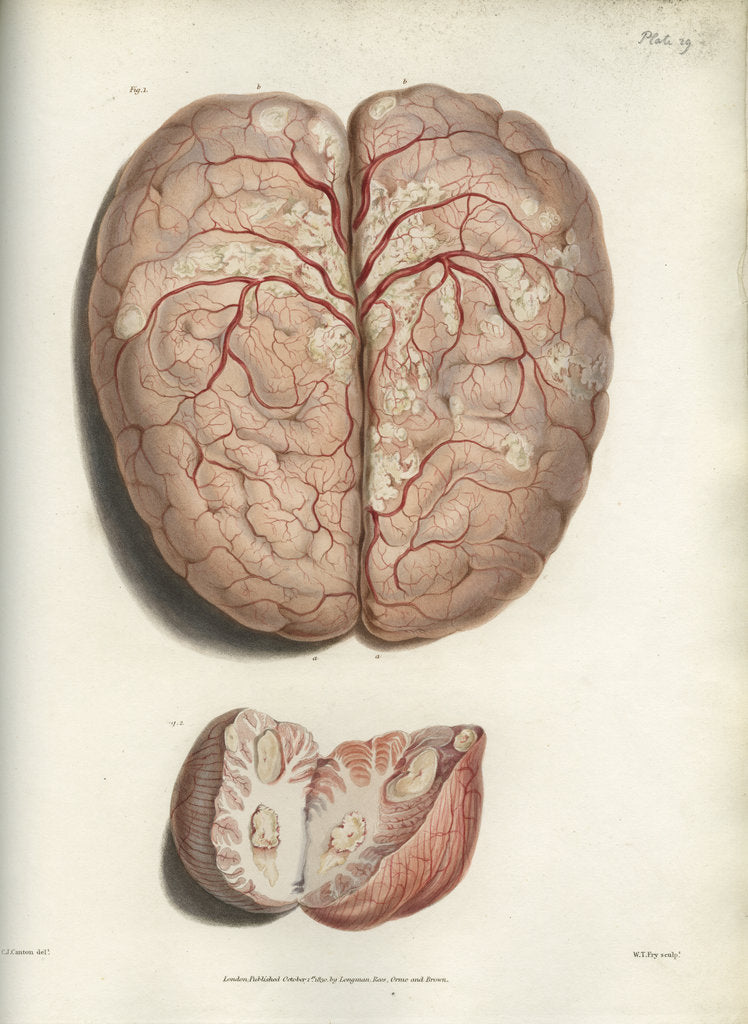 Detail of 'Scrofulous tubercles in the brain' by C J Canton