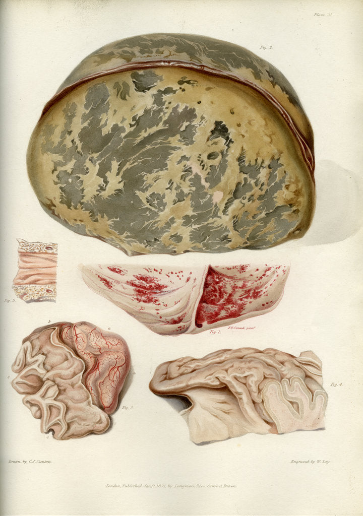 Detail of Parts of the brain including the dura mater by William Say