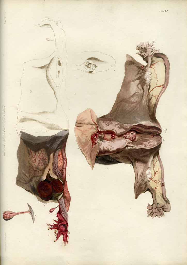Detail of 'Diseases of the uterus giving rise to excessive nervous irritation' by C J Canton