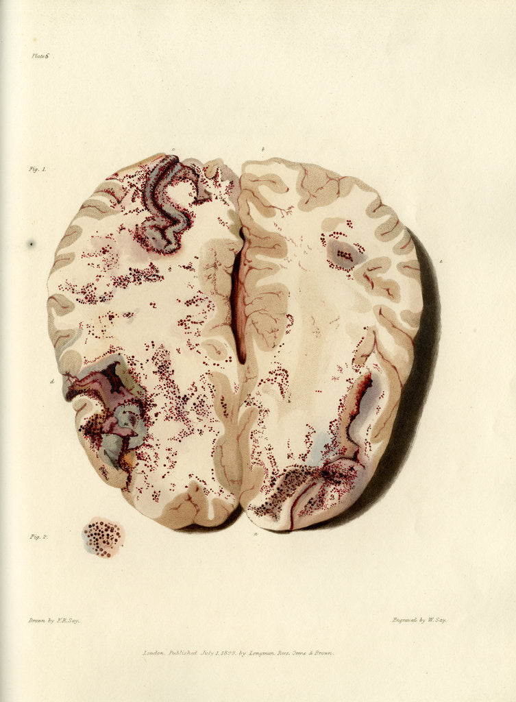Detail of 'Extravasion in the brain from obstructed circulation' by William Say