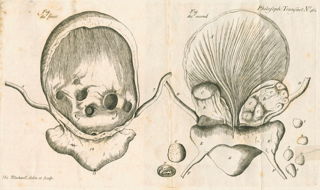 Detail of Human bladder and bladder stones by Elizabeth Blackwell