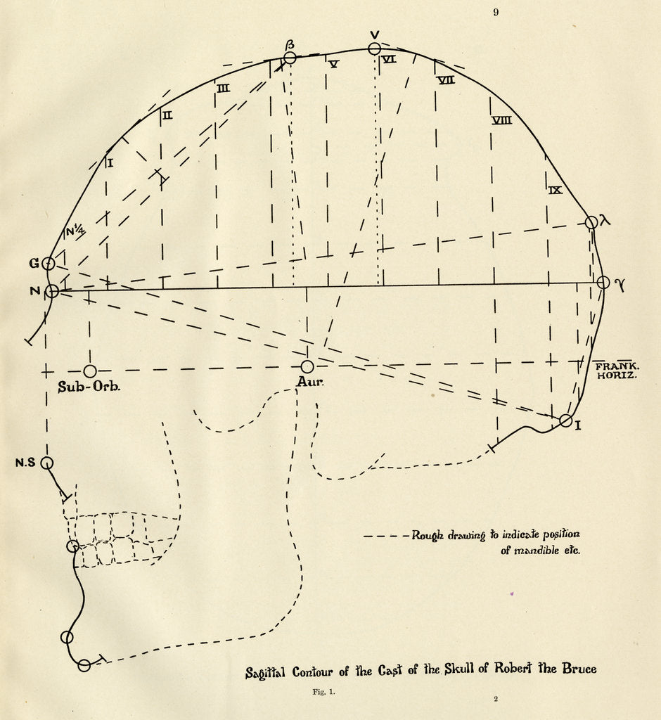 Detail of Measurements of Robert the Bruce's skull by unknown
