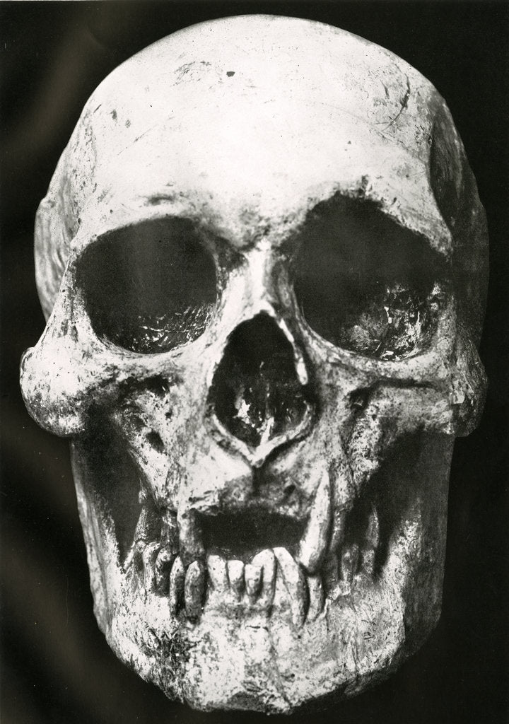 Detail of Robert the Bruce's skull by unknown