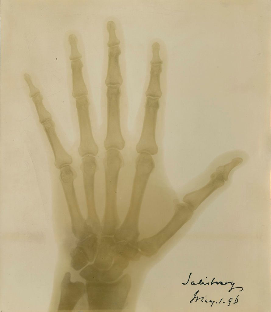 Detail of X-ray photograph of the hand of Robert Arthur Talbot Gascoyne-Cecil by Alan Archibald Campbell Swinton
