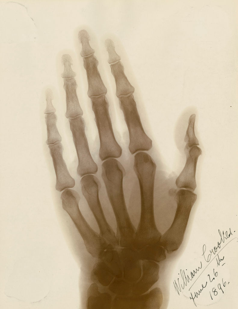 Detail of X-ray photograph of the hand of William Crookes by Alan Archibald Campbell Swinton