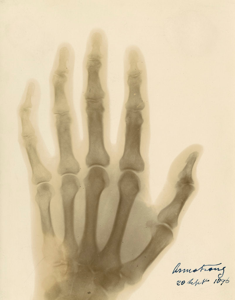 Detail of X-ray photograph of the hand of William George Armstrong by Alan Archibald Campbell Swinton