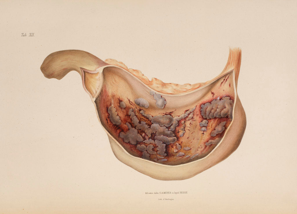 Detail of Effect of diphtheric-cholera on the mucous membrane of the stomach by d'Harlingue