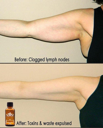 Lymphatic Drainage Ginger Oil -