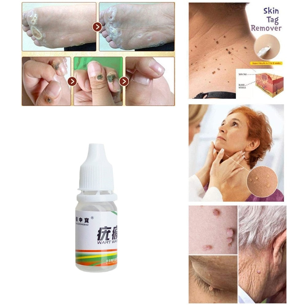 full Body Warts Treatment Removal Cream