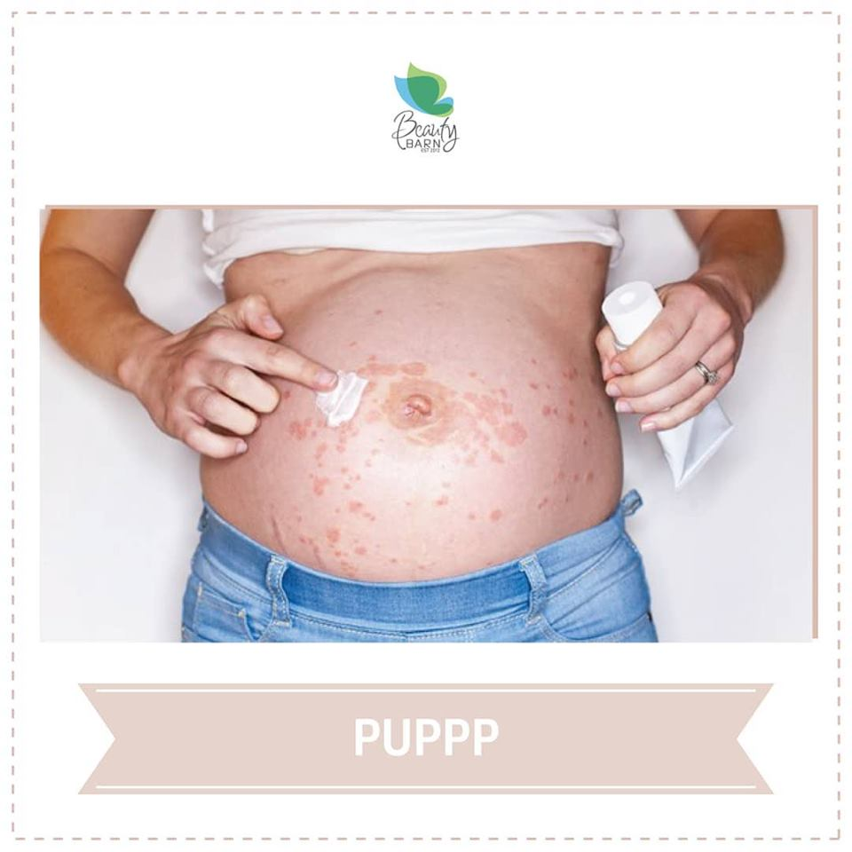PUPPP (Pruritic Urticarial Papules and Plaques of Pregnancy)