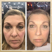 Non Surgical Instant Face Lift