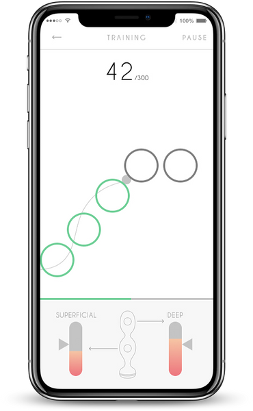 pelvic floor biofeedback with kegel exercises app Perifit