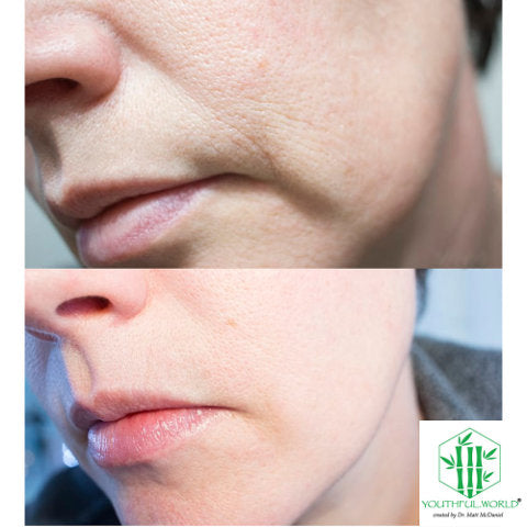 Mouth Before and After - Bio Placenta Anti Wrinkle Serum