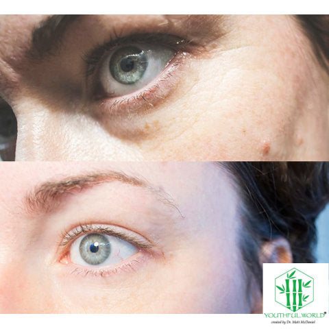 Eye Before and After - Bio Placenta Anti Wrinkle Serum
