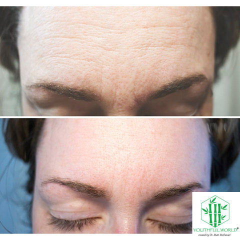 Forehead Before and After - Bio Placenta Anti Wrinkle Serum