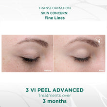 Vi Advanced Peel Package of 3