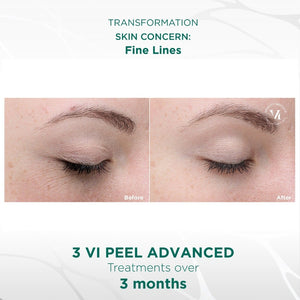 Vi Advanced Peel (office treatment)