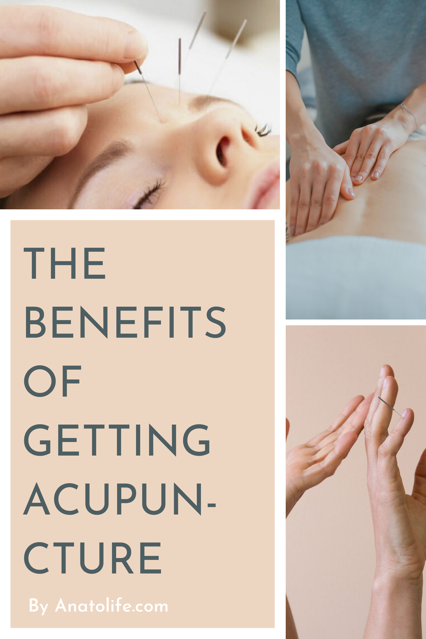 The benefits of Acupuncture by Anato regenerative skincare
