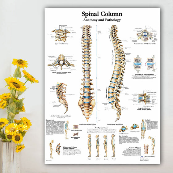 Chiropractor Spinal Column Poster Canvas Wall Art No Frame T1 ( 4 sizes available)