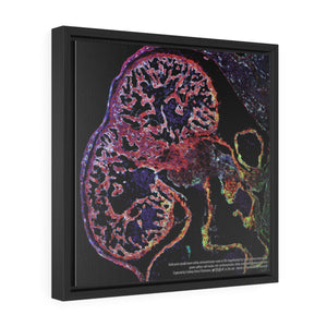 Heart ventricle microscopy canvas wall art for cardiologist office