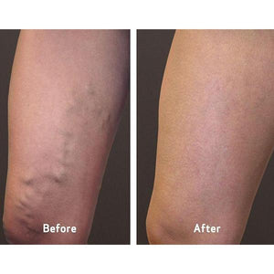 Varicose Veins Treatment Cream
