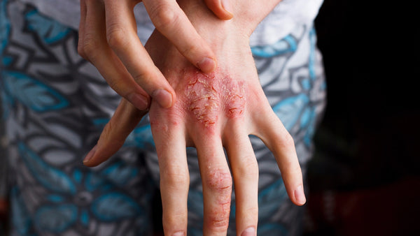 The Eczema Guide: Understanding the triggers