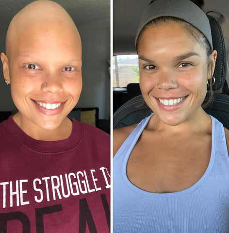 Jessica Beniquez Battle with Cancer