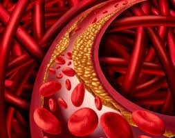 Hydroxytyrosol reduces the development of atherosclerosis